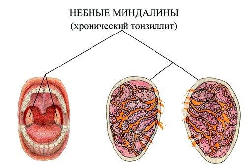 Что представляет собой заболевание