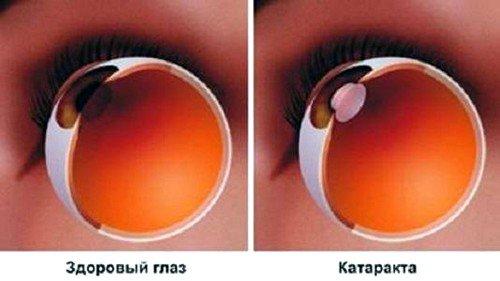 Здоровый глаз и катаракта