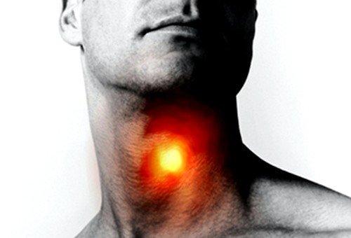 сильная боль в горле при лакунарной ангине