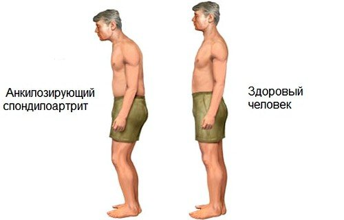 наиболее яркий симптом - тугоподвижность позвоночника