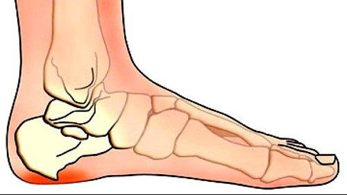 Ушиб стопы сопровождается резкими, жгучими болями
