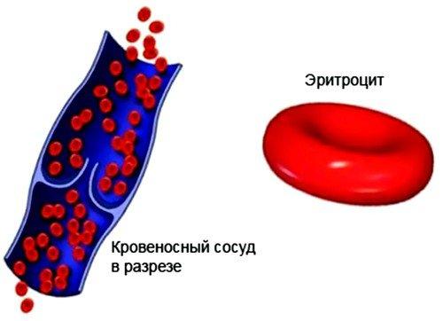 Аутоиммунная гемолитическая анемия
