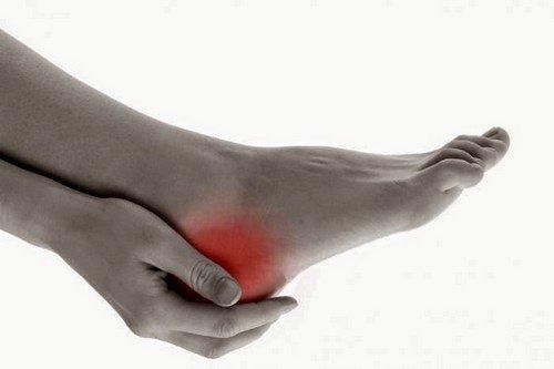 боли могут провоцировать пяточные шпоры