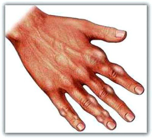 Подагра как причина болей в суставах