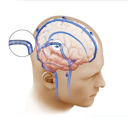 Внутричерепное давление как причина боли в затылке