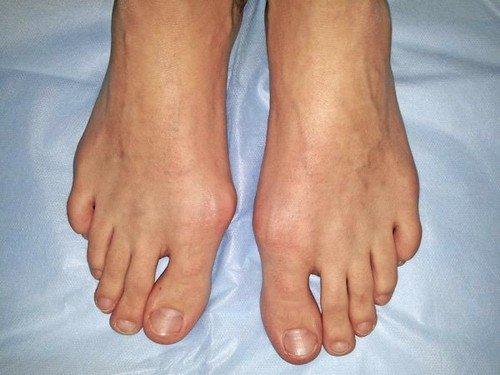 Вальгусная деформация большого пальца, образуется вследствие ношения узкой обуви
