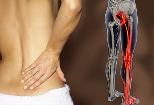 Боль в пояснице отдает в другие органы