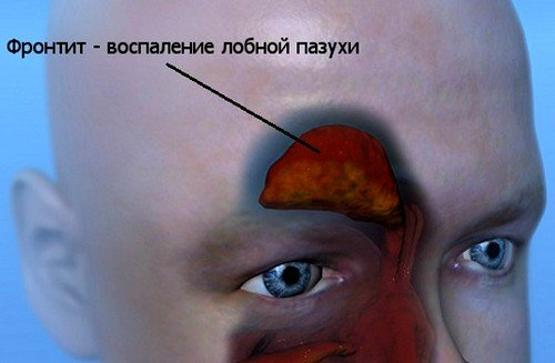 Причины появления фронтита