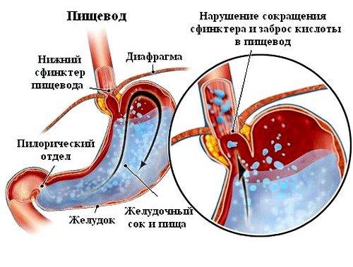 дуодено гастральный рефлюкс может оказаться синдромом, сопровождающим отдельные заболевания желудочно-кишечного тракта