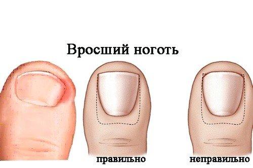 Причины возникновения вросшего ногтя