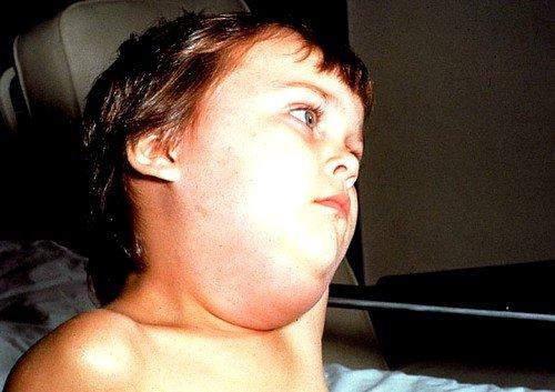 Чаще всего этим недугом можно переболеть в возрасте между 3 и  7 годами