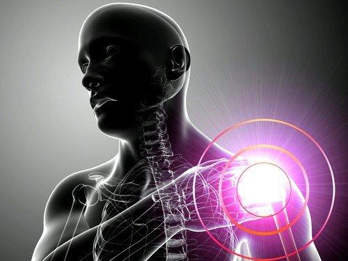 Отложение солей кальция как причина боли в плечевом суставе