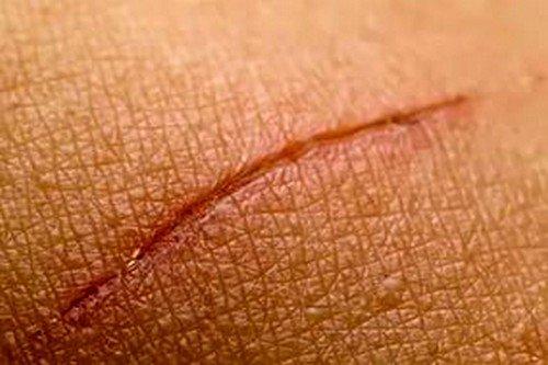 Д-Пантенол используется при заживлении самых разных кожных проблем-повреждений