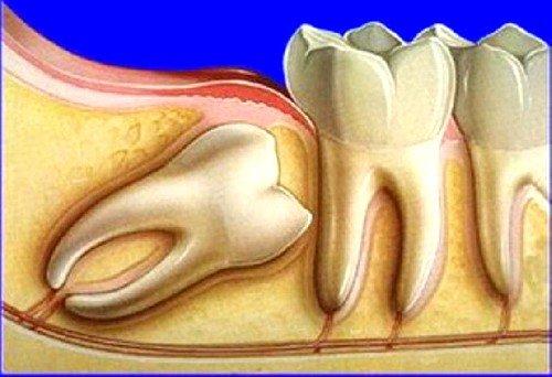 Зубы мудрости можно смело отнести в разряд органов-рудиментов