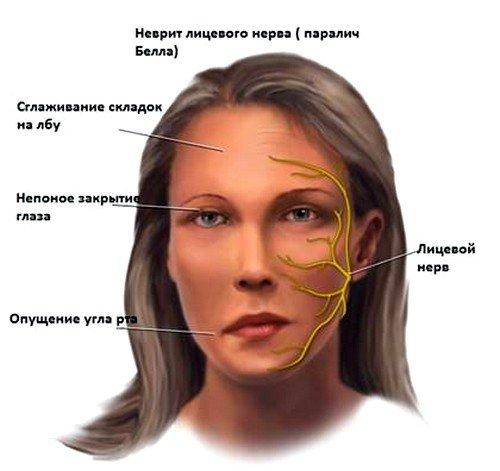 расстройства на почве нервных потрясений как причина воспаления лицевого нерва