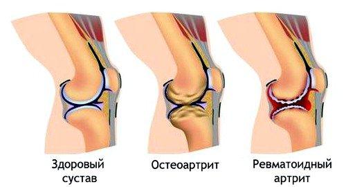 ревматоидный артрит как причина боли в колене