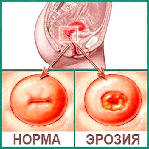 повреждение слизистой может быть вызвано гормональными нарушениями в женском организме