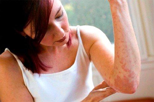 Белодерм применяется при разного рода дерматозах