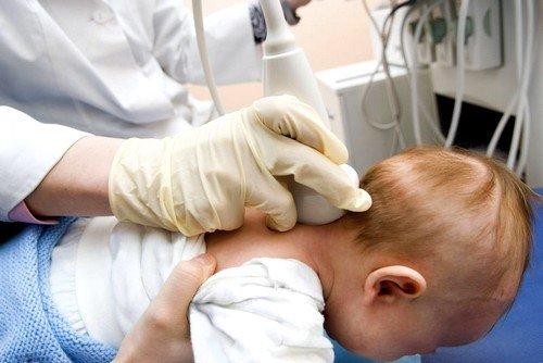 УЗИ сосудов головного мозга у детей