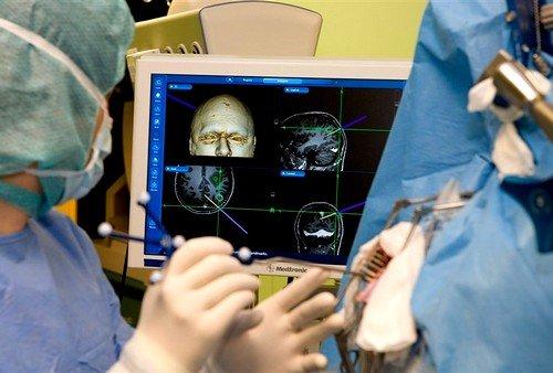 Диагностика опухоли головного мозга