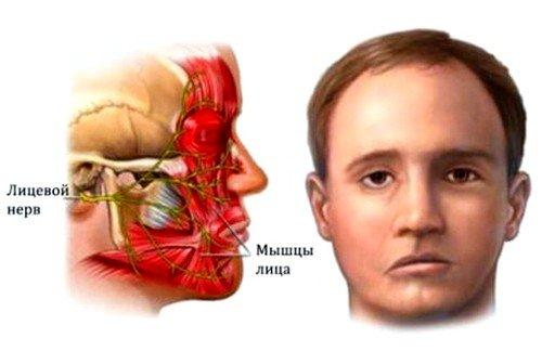 паралич Белла как причина онемения языка и губ