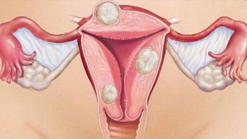 Миома матки – показание к операции