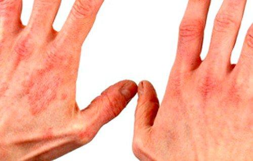 Мазь назначают для снижения активности реакций воспаления дерматозов