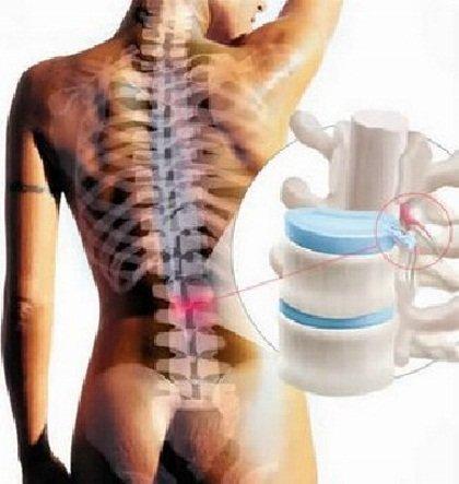 Остеохондроз – причина поясничных болей