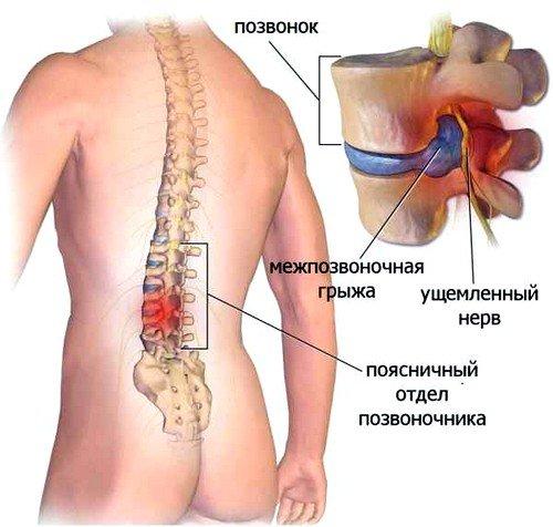 сновной причиной межпозвоночной грыжи является остеохондроз