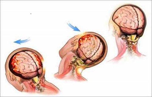 Зоны поражения головного мозга при ушибе