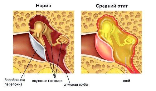 Воспаление среднего уха может появляться у детей только с 3 недели от рождения