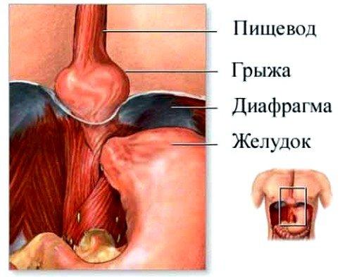 Лечение боли в пятках