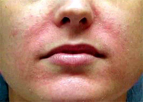 Сильные боли или просто неприятные ощущения в кишечнике - симптом дисбактериоза