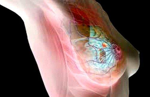 Гормональные сбои как возможная причина болей в молочной железе
