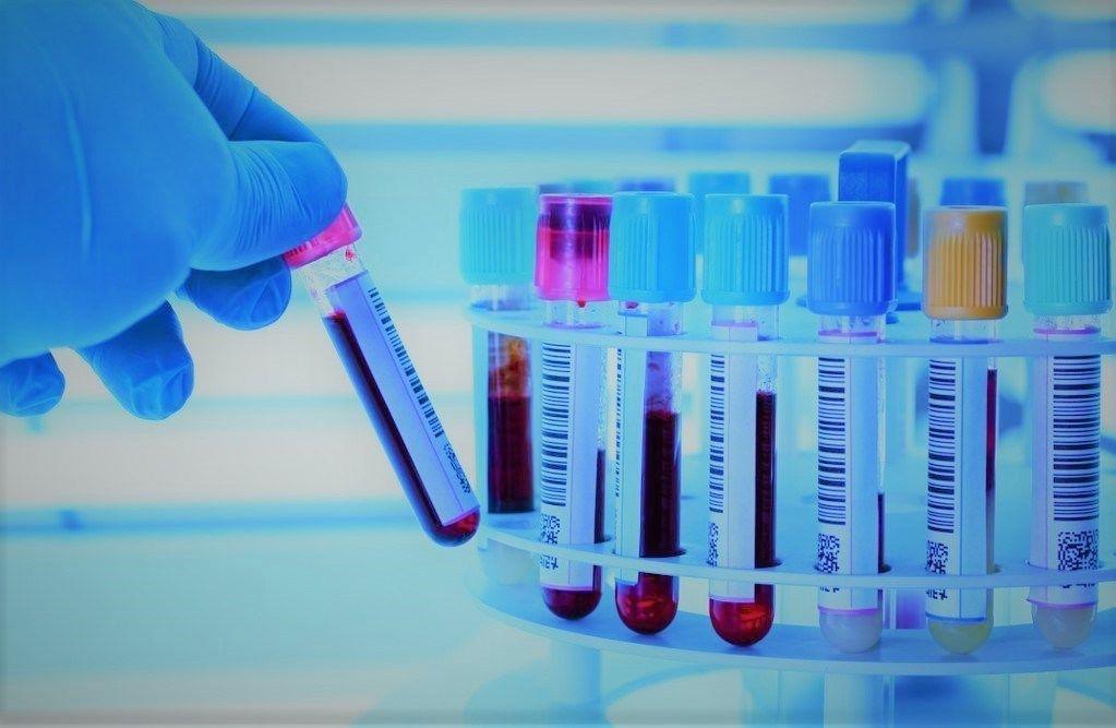 Анализ на гликированный гемоглобин назначается пациентам с подозрением на такую патологию, как сахарный диабет