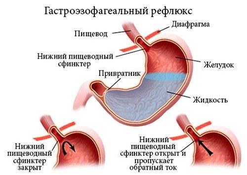 Гастроэзофагеальнаярефлюксная болезнь