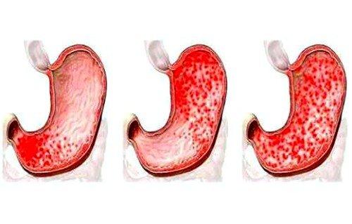 эрозивный гастрит характеризуется наличием воспаления и покраснения на оболочке желудка