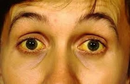 Желтуха – симптом цирроза печени
