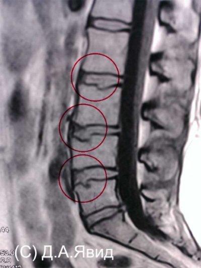 Грыжа Шморля на рентгеновском снимке
