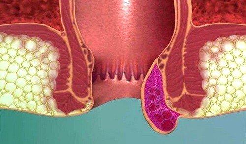 Формирование геморроидальных узлов на начальной стадии не имеют конкретной симптоматики