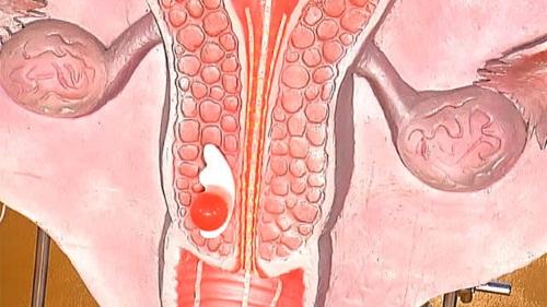 Дисплазия шейки матки – предраковое состояние