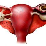 Как определить внематочную беременность