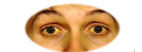 Желтые склеры глаз и желтизна кожи