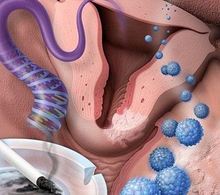 Курение, внутренние инфекции – увеличивают риск развития дисплазии шейки матки