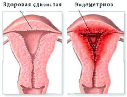 миома матки с эндометриозом