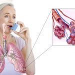 Бронхиальная астма – лечение
