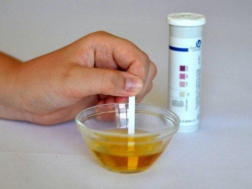 Тест-полоски на ацетон в моче легки в применении и не требуют специальных навыков и знаний