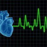 Кардиогенный шок – критическое состояние