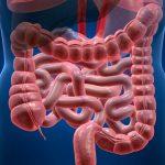 Синдром раздраженного кишечника, лечение
