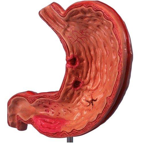 Как лечить язву желудка с помощью народных средств?